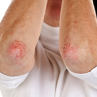 Treatment for Psoriatic Arthritis