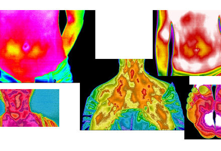 Infrared Thermography in Rheumatology